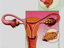 Investigations of the Fallopian tubes and uterine cavity